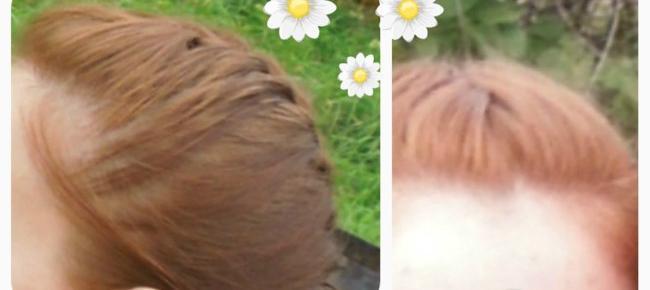 осветление волос ромашкой фото часто прячут здесь